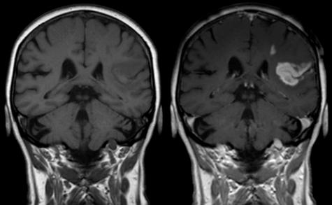 MRI contrast vs no contrast