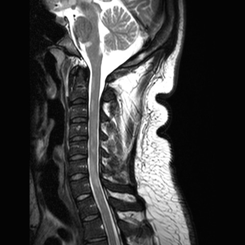 multiple sclerosis and MRI